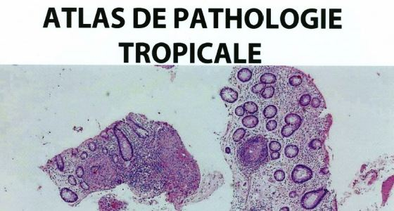 ATLAS DE PATHOLOGIE TROPICALE